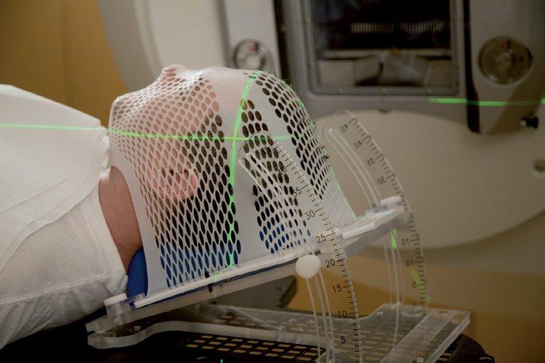 Radioterapia contro il cancro - Fondazione Ospedale Alba-Bra